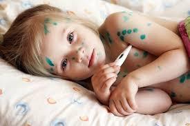 Thủy đậu ở trẻ em